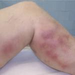 pierna-con-flebitis-imagen