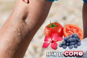 Como-eliminar-las-varices-de-las-piernas-con-remedios-caseros