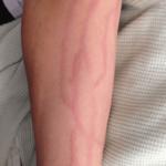 flebitis-imagenes-brazo