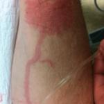 flebitis-imagenes-por-inyeccion