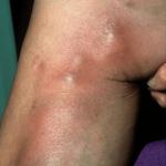 flebitis-imagenes-pierna