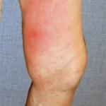 flebitis-imagenes-roja