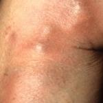 flebitis-imagenes-muslo
