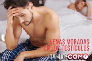 Que-es-la-varicocele-testicular-en-hombres